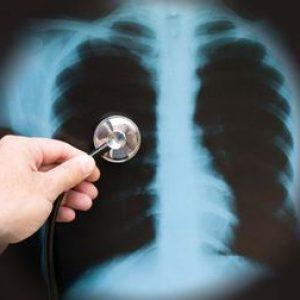Pneumonia ascunsa